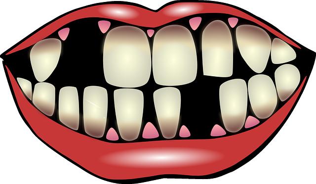 sanjati polomljene zube ispadanje zuba zub