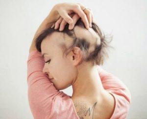 sanjati da vam opada kosa u pramenovima