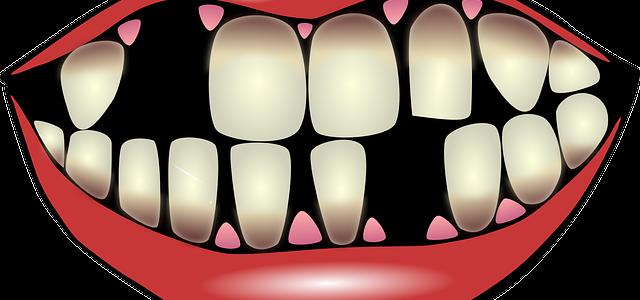 Polomljene zube